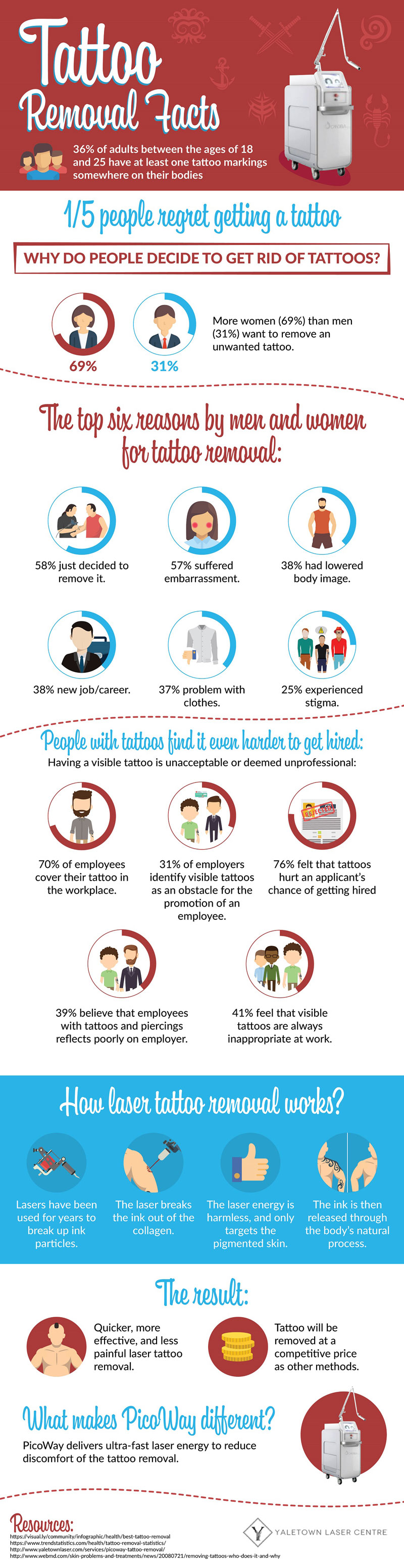 Infographic: Tattoo Removal Facts