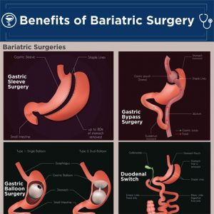 benefits-bariatric-surgery-fimg