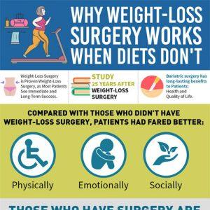 weight-loss-surgery-fimg