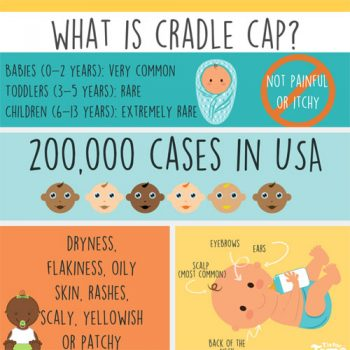 cradle-cap-info-treatment-fimg
